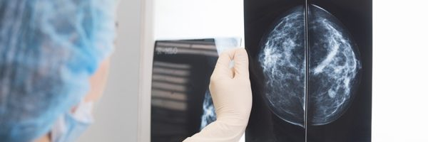 Tomosynthesis for Breast Cancer Screening: Is it the Right Decision?